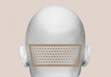 FUE Haartransplantation