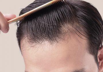 Receding Hairline