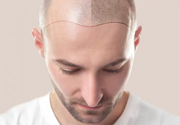 Hairline Design