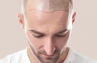 Haarliniendesign
