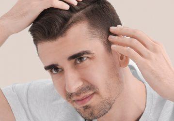 Korrektur vorheriger Haartransplantation