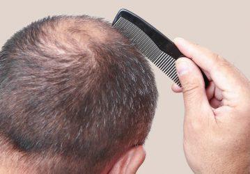 Hairfiller