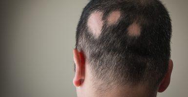 Kreisrunder Haarausfall – Ursachen und Behandlungsmöglichkeiten