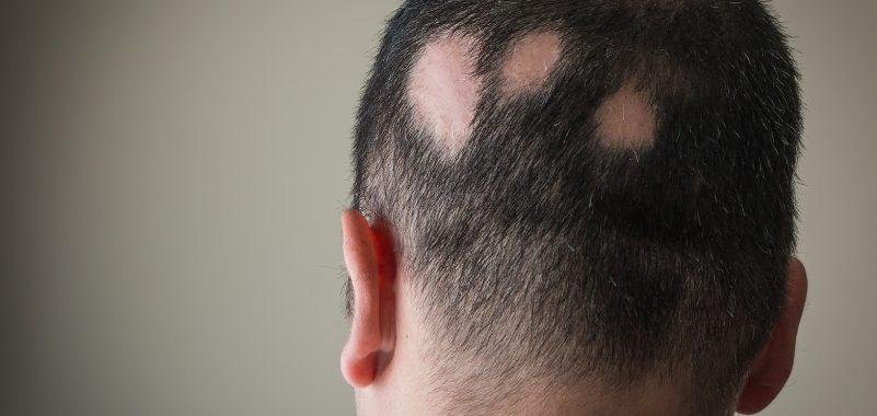 Kreisrunder Haarausfall Behandlung Muenchen