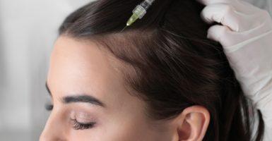 Was ist vor einer Haartransplantation zu beachten?