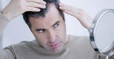Haarausfall durch hormonelle Veränderungen – Ursachen und Behandlungsmöglichkeiten