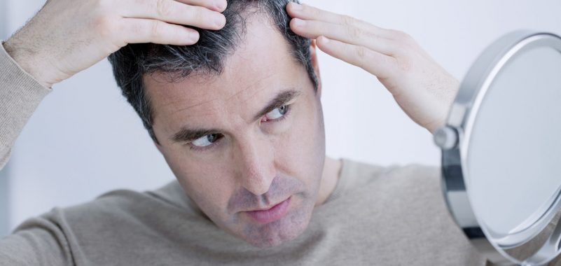 Hormonell bedingter Haarausfall Behandlung München Regenera Activa