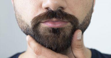 Mit einer Barttransplantation zum Traum-Bart